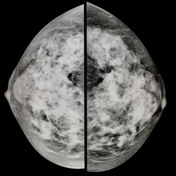 Вариант нормы маммографии но высокая кальцификация