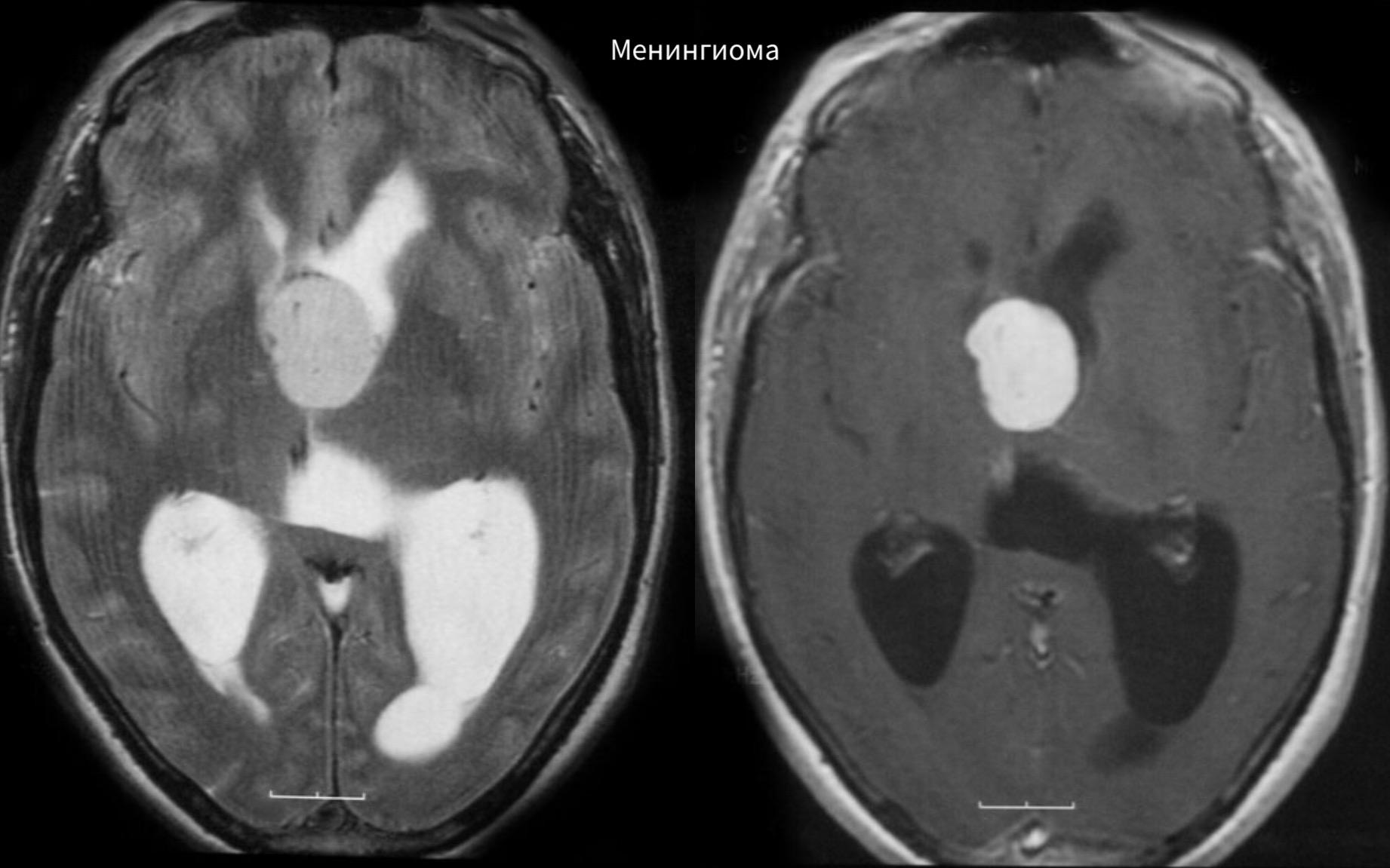 Фото детей с кистой в головном мозге