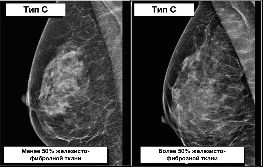 Структура молочной железы до 50