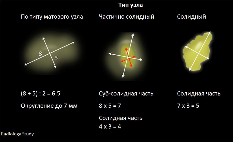 Измерение фляйшнер
