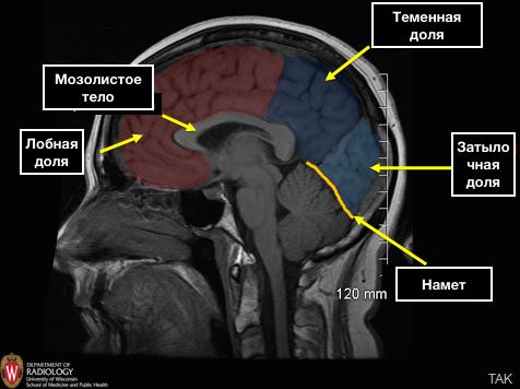 Cerebral_Hemispheres_MR