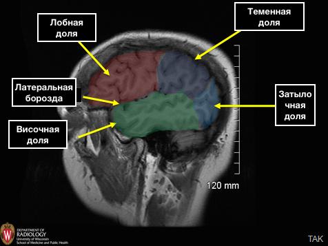 Cerebral_Hemispheres_MR_temporal_lobe
