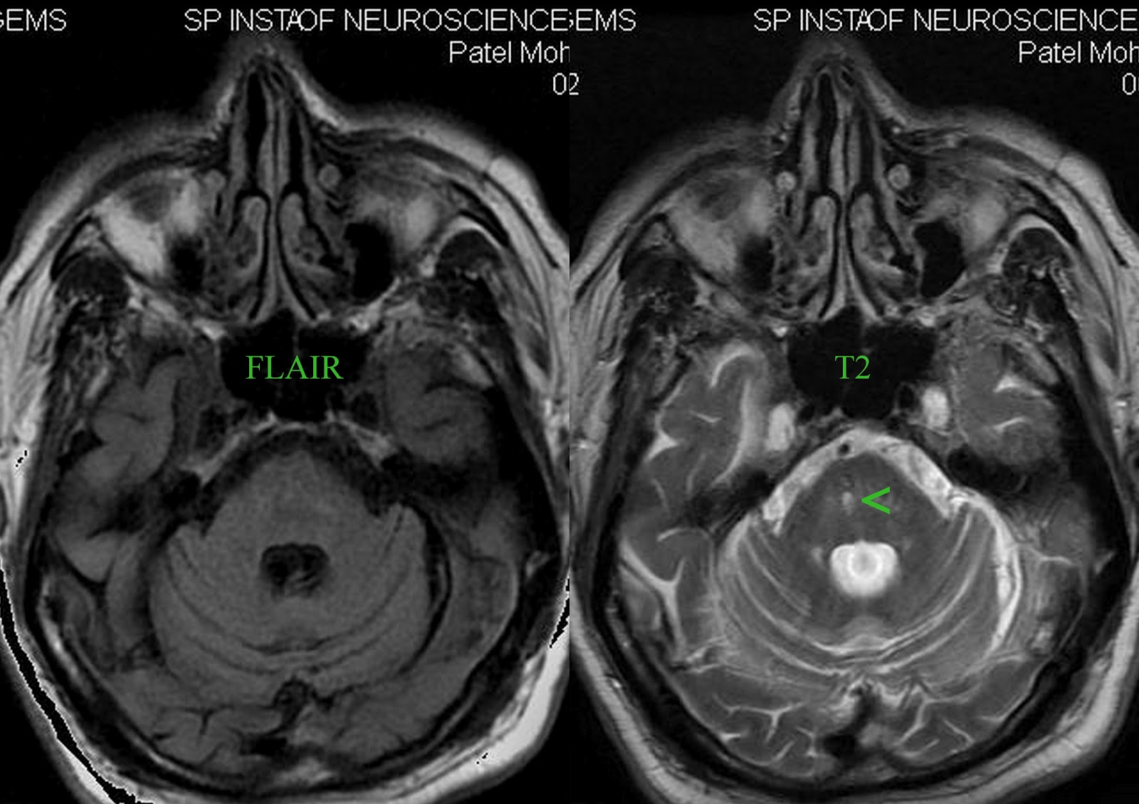 Lack of sensitivity of FLAIR for posterior fossa lesions