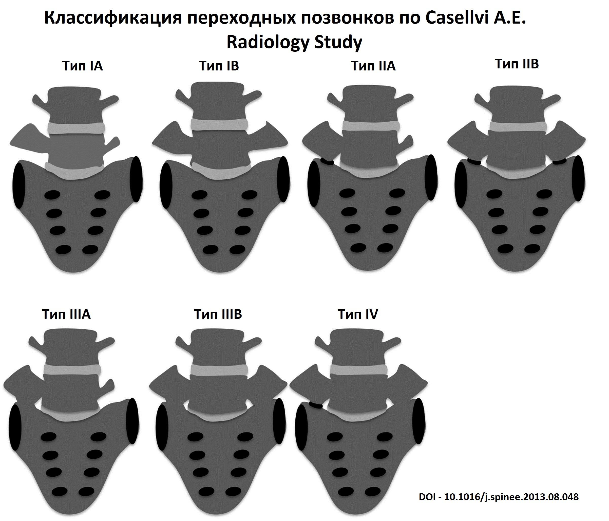каставелли